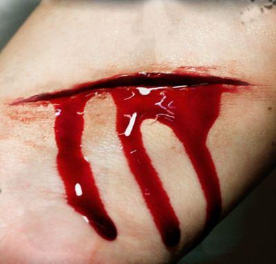 Slash Prosthetics